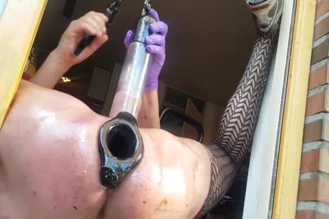 Are pumping pt extreme prolapse anal business your hands!